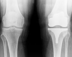 Knee Replacement Attorneys