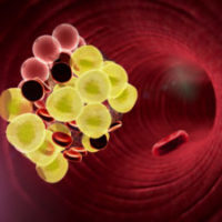 Leifer-Why-The-Biggest-Myths-About-IVC-Filter-Injuries-May-Actually-Be-Right